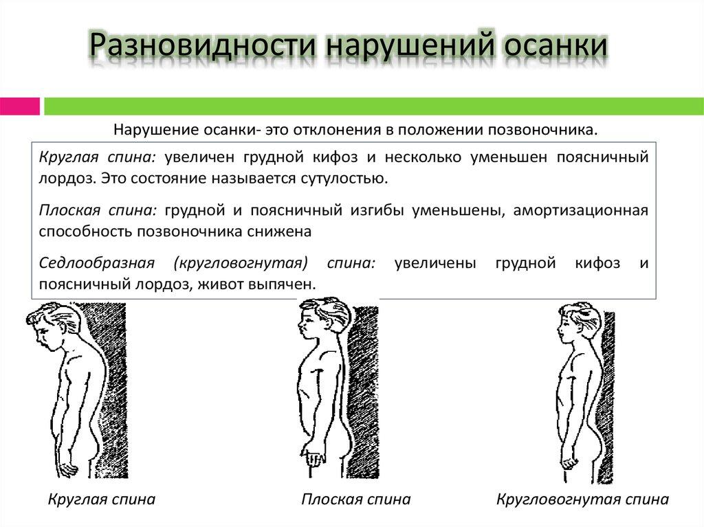 Кругловогнутая спина - признаки и лечение   767x1024