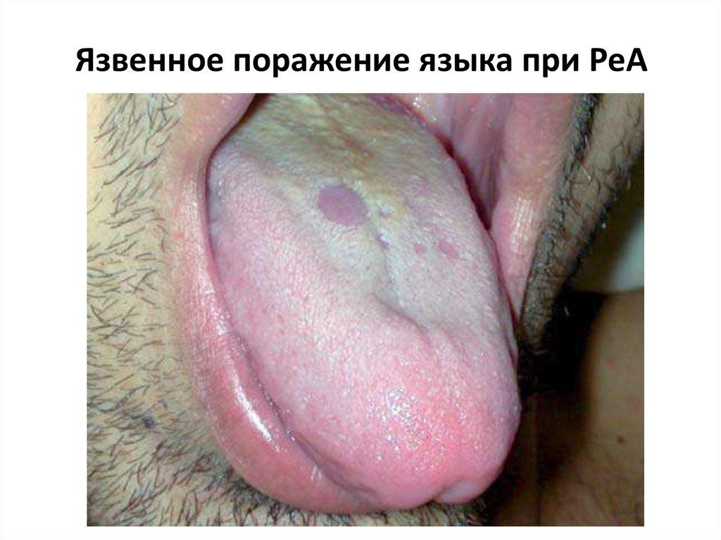 Ягоди в псориазис