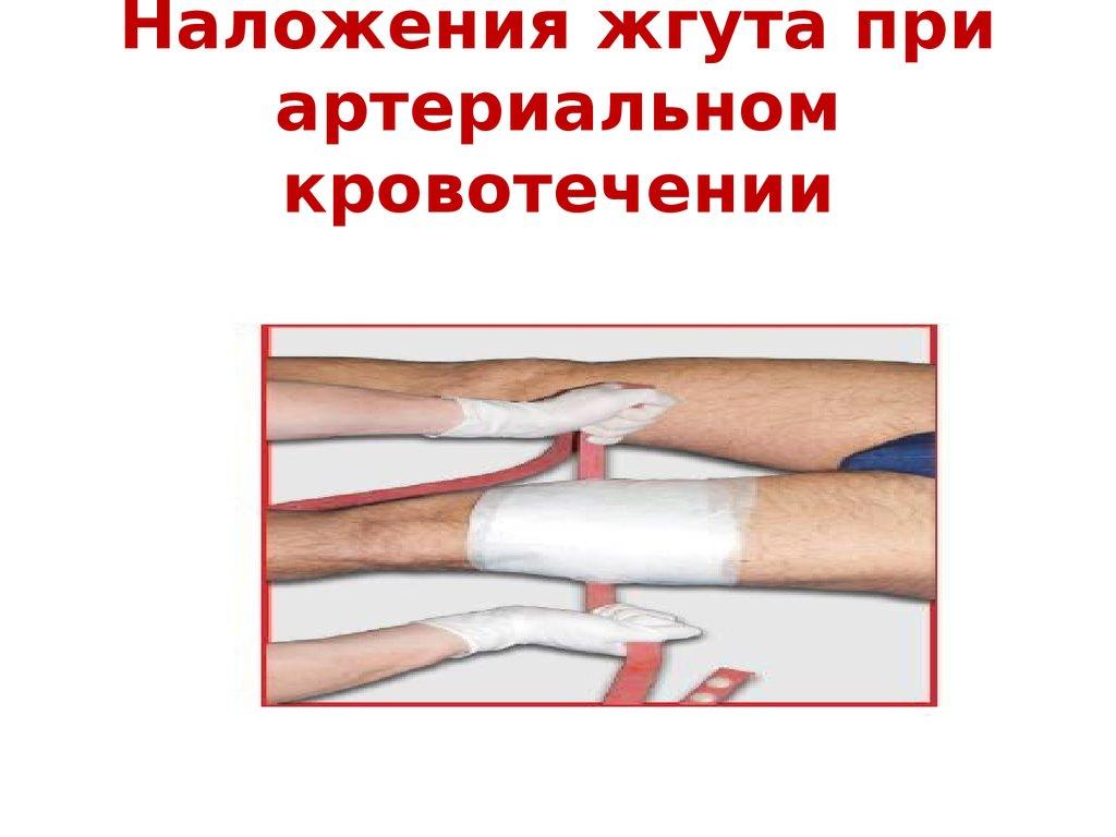 Методы остановки внешнего кровотечения
