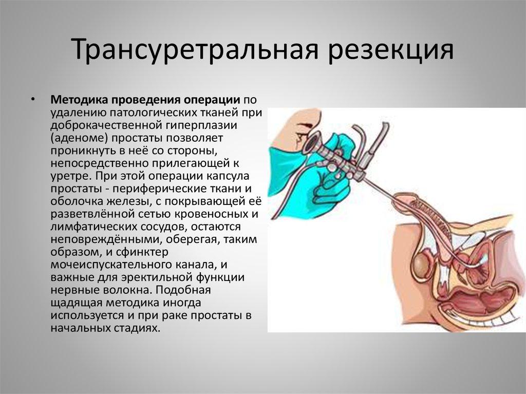 Аденома простаты операция боли при мочеиспускании