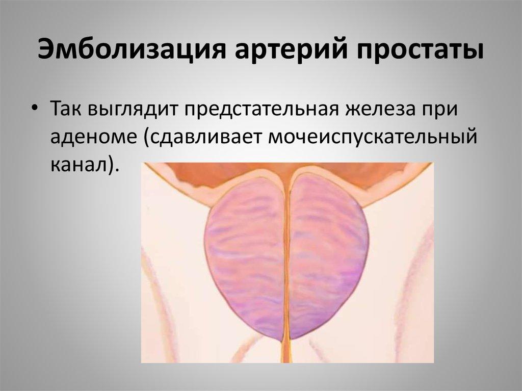 Эмболизация артерий простаты где делают