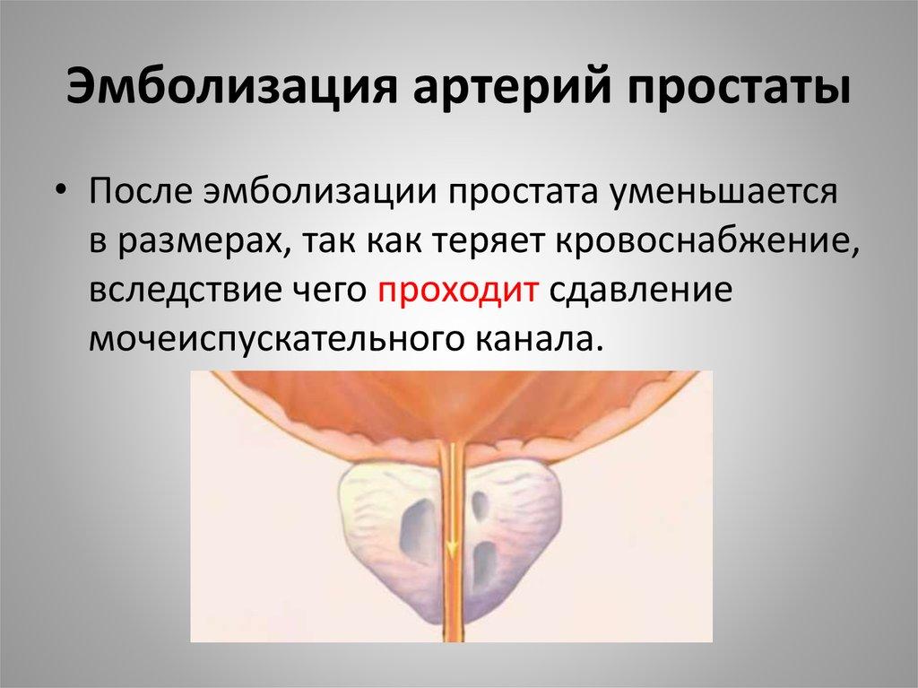 Эмболизация артерий простаты в красноярске