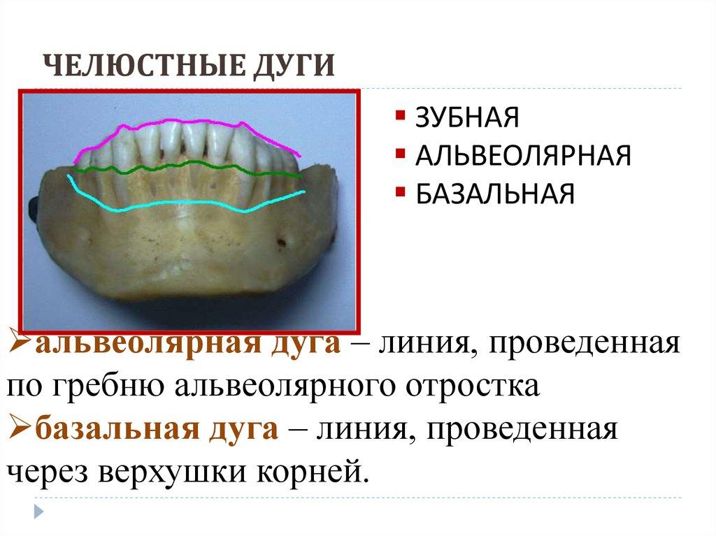 приблизиться природным зубная дуга картинка тех пор много