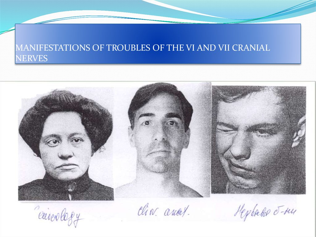 MANIFESTATIONS OF TROUBLES OF THE VI AND VII CRANIAL NERVES