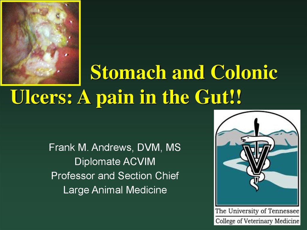 Stomach and Colonic Ulcers: A pain in the Gut - online