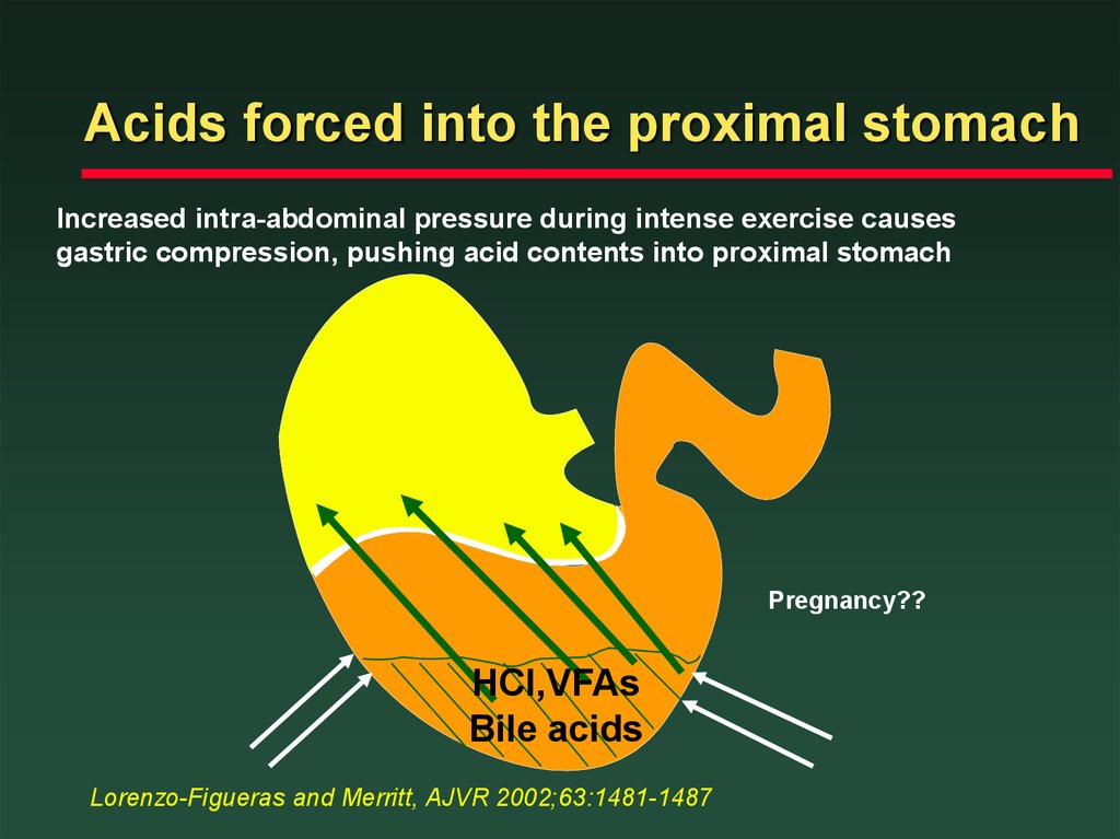 Acids forced into the proximal stomach