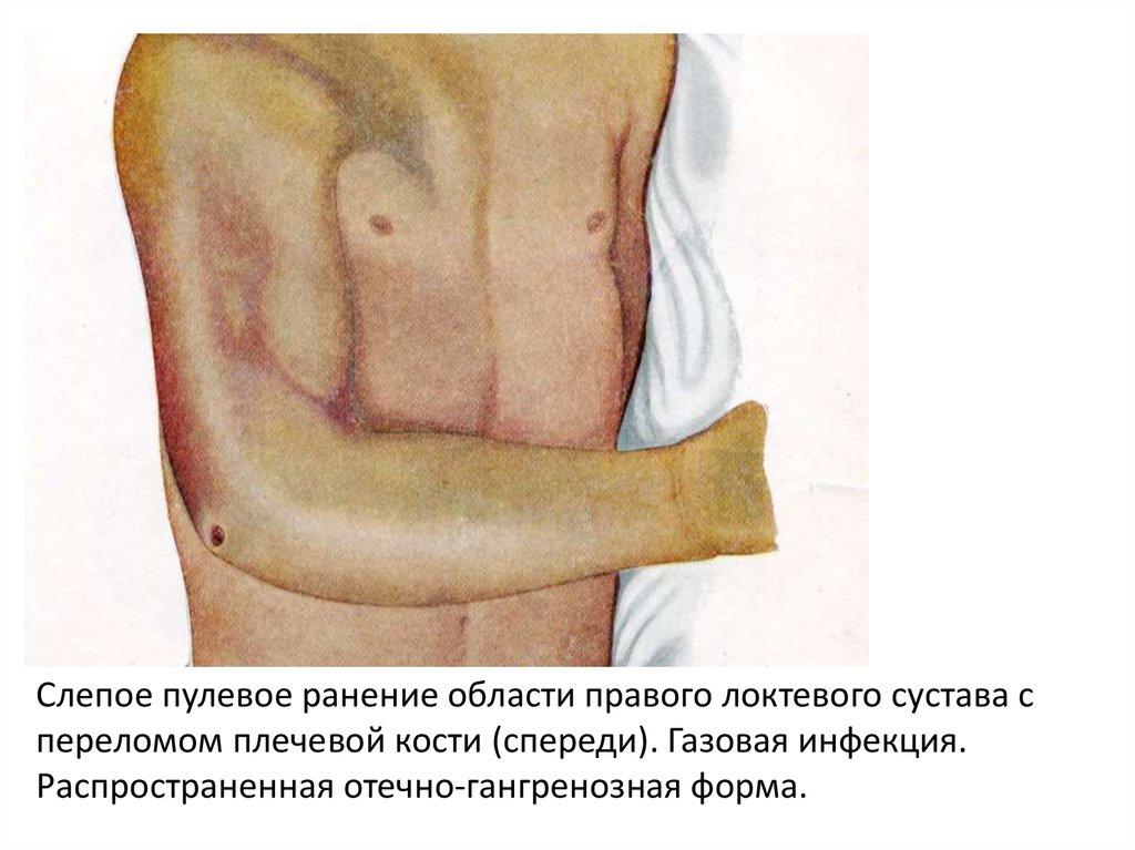Пулевое ранение в сустав вывих коленного сустава у детей