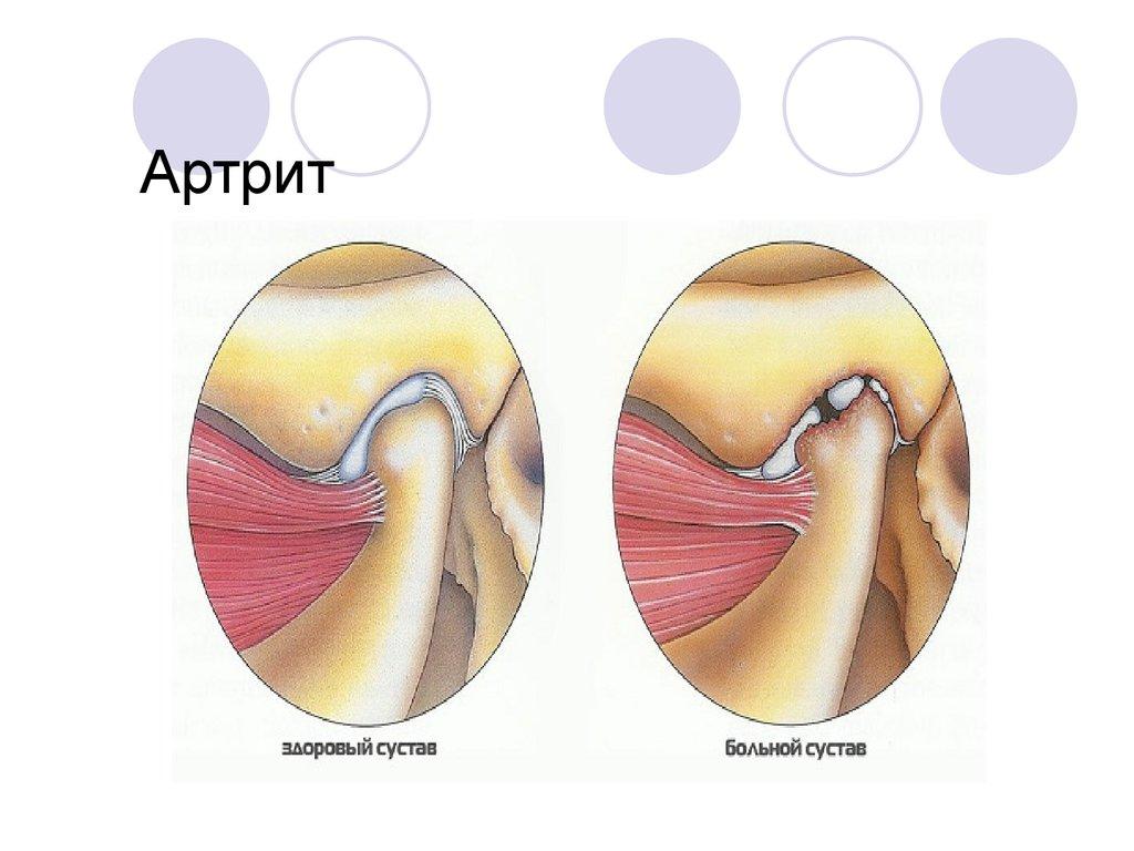 Артрит височного нижнечелюстного сустава лечение фото