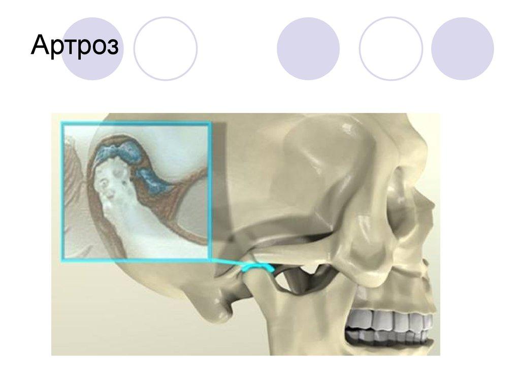 Артрит или артроз височно нижнечелюстного сустава фото