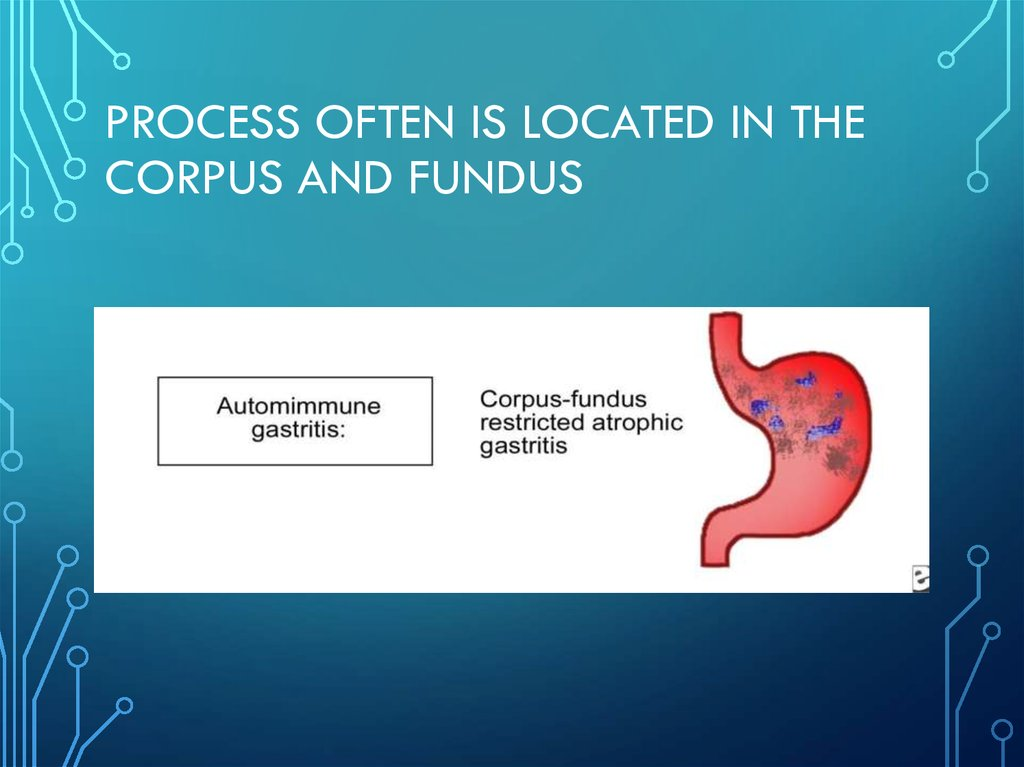 Process often is located in the corpus and fundus