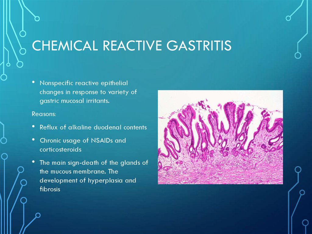 Chemical reactive gastritis