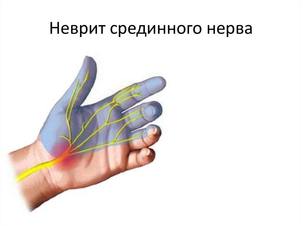 неврит локтевого нерва картинка садоводов очень