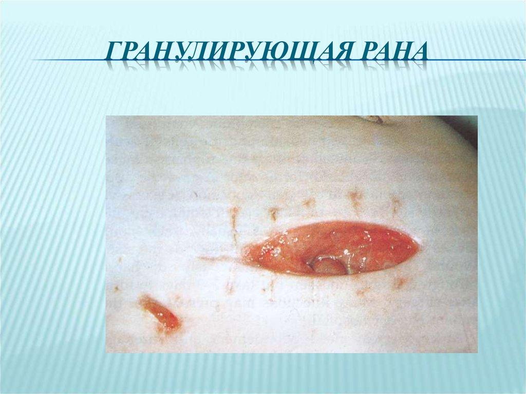 Грануляция раны картинка