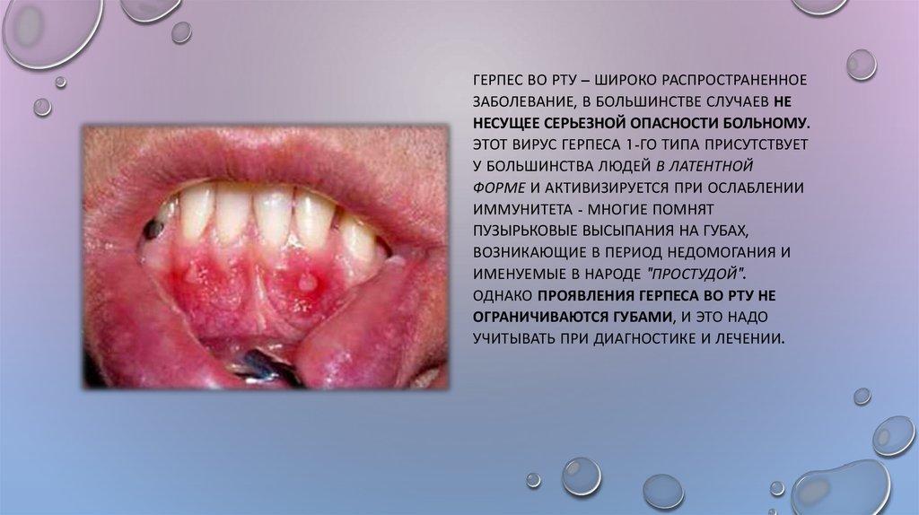 Скарлатина у детей: симптомы, лечение, стадии, профилактика | 574x1024