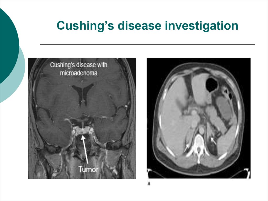 Cushing's disease investigation