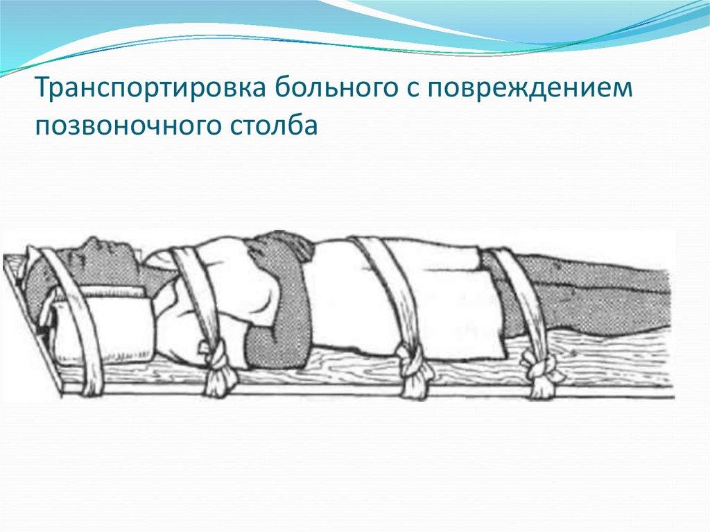 Транспортировка пострадавшего с травмой позвоночника осуществляется