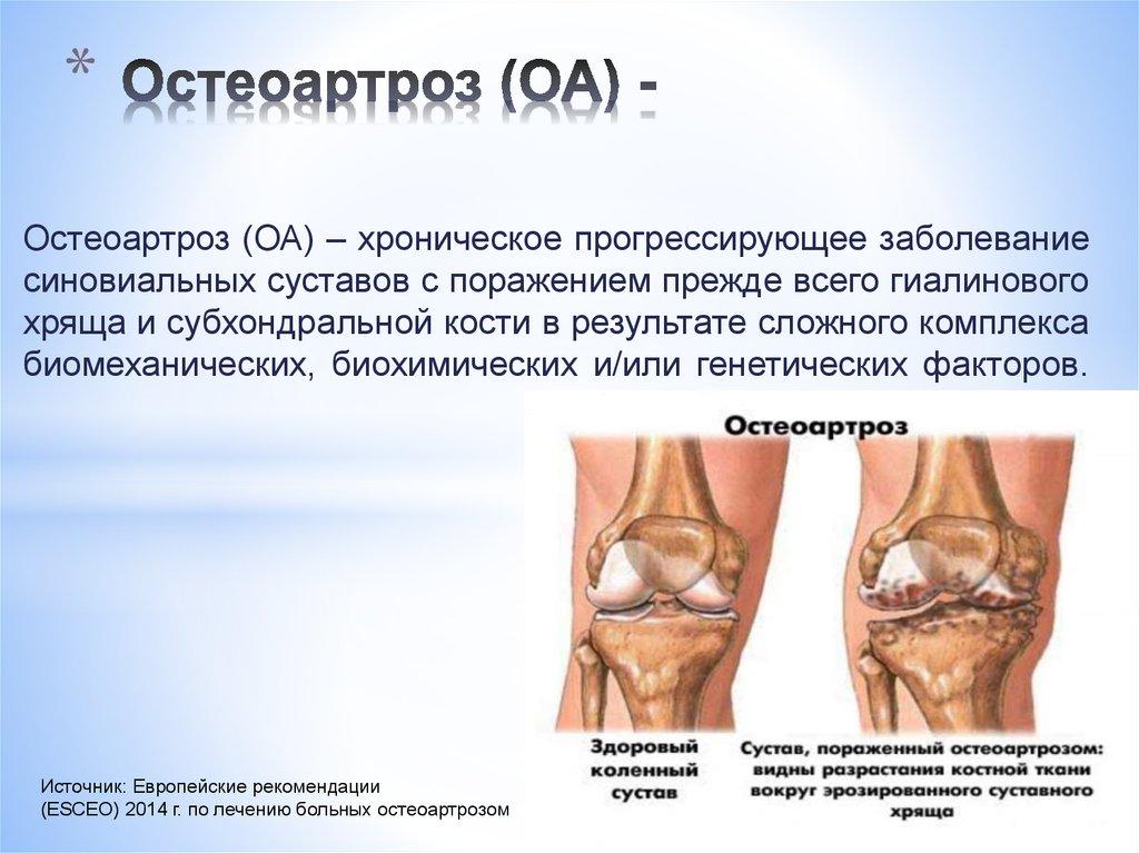 Эффективное лечение остеоартроза коленного сустава можно ли смазывать суставы настойкой из березы
