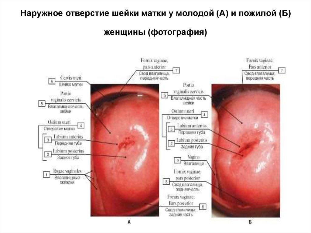 женские наружные органы половые фото