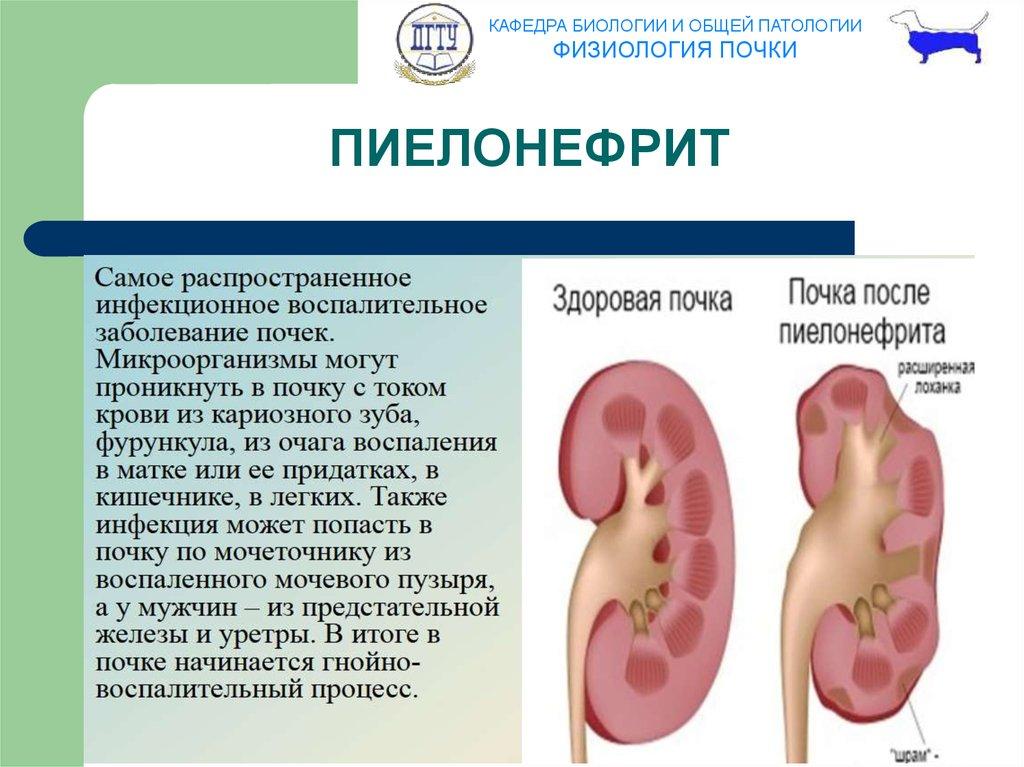 Пиелонефрит Причины Симптомы Диета. Пиелонефрит – симптомы, причины, виды и лечение пиелонефрита