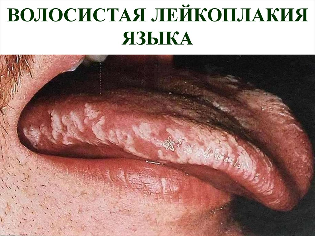Oral Hairy Leukoplakia In The Buccal Mucosa Of A Healthy, Hiv
