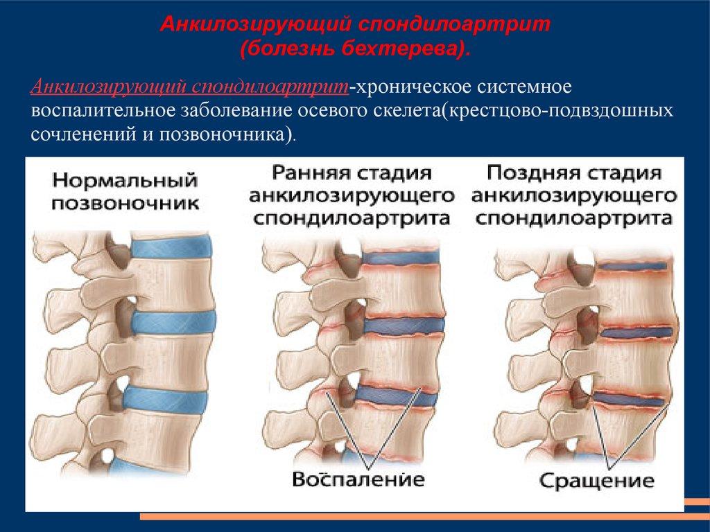Медикаментозная терапия суставных заболеваний хондропротекторами