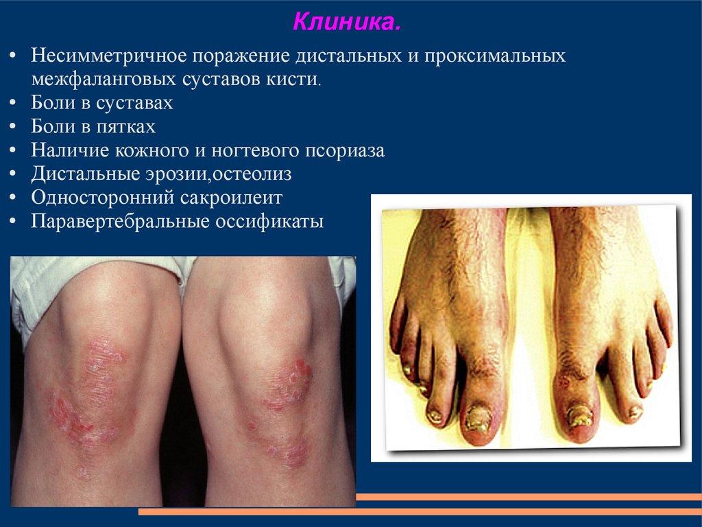Кожные заболевания на суставах ортез на коленный сустав orlett