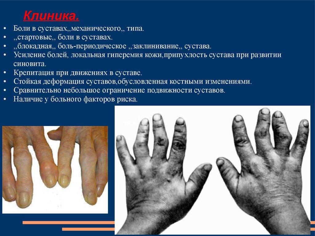 Хроническое заболевание соединительной ткани суставов мрт кт плечевого сустава