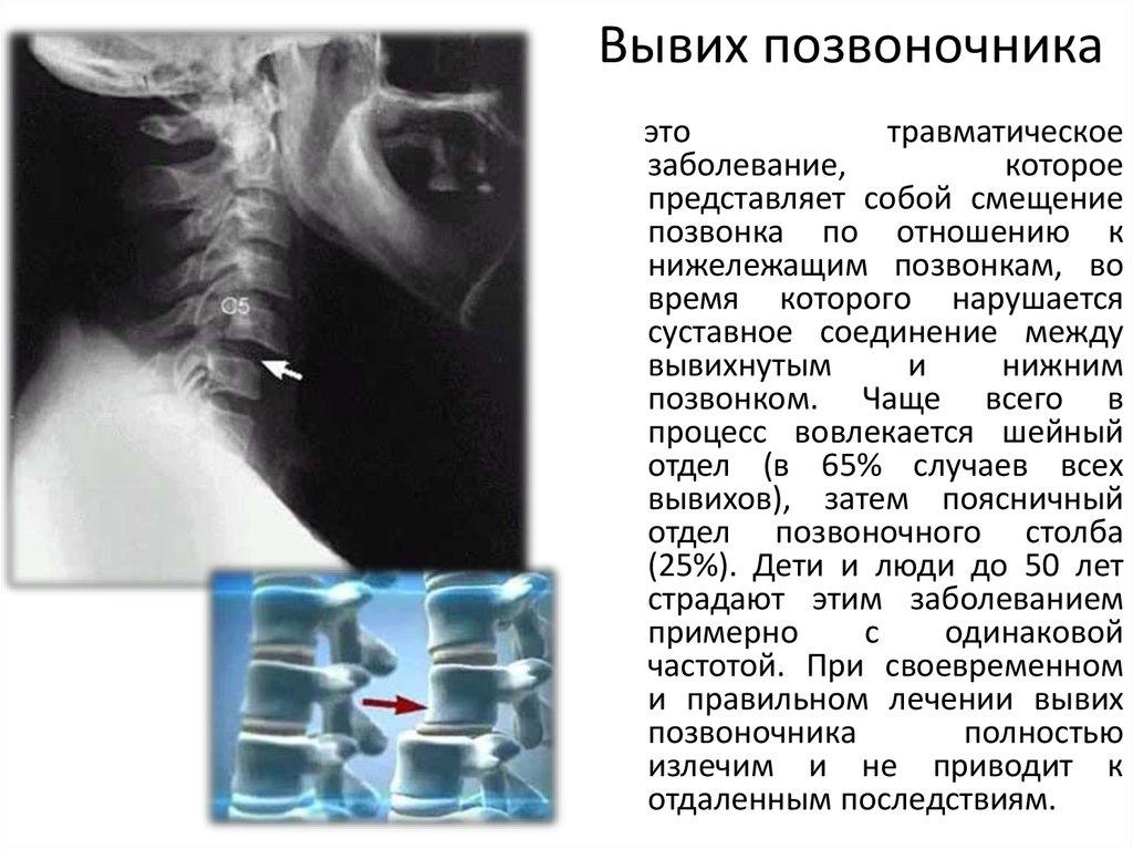 Пчелиный яд гинекология
