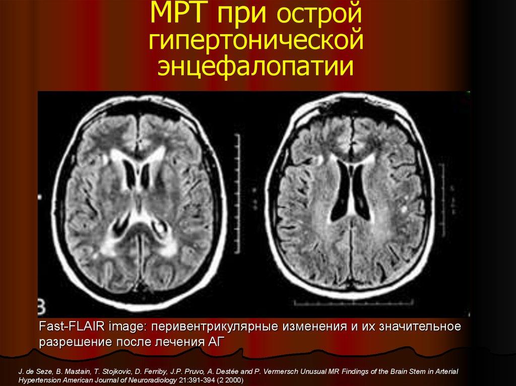 Острая гипертоническая энцефалопатия мкб 10