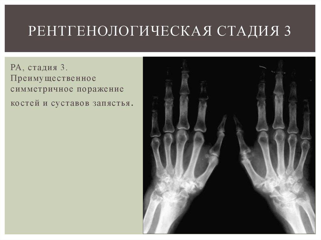 Рентгенологические стадии артрита