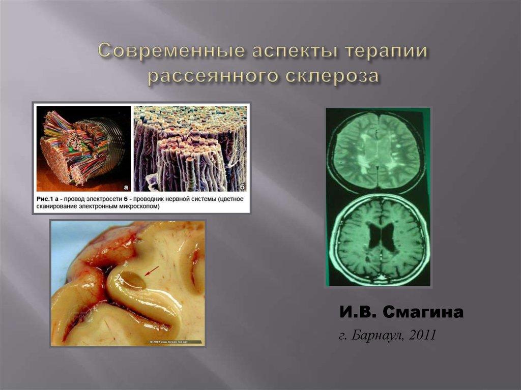 Лечение рассеянного склероза по программе
