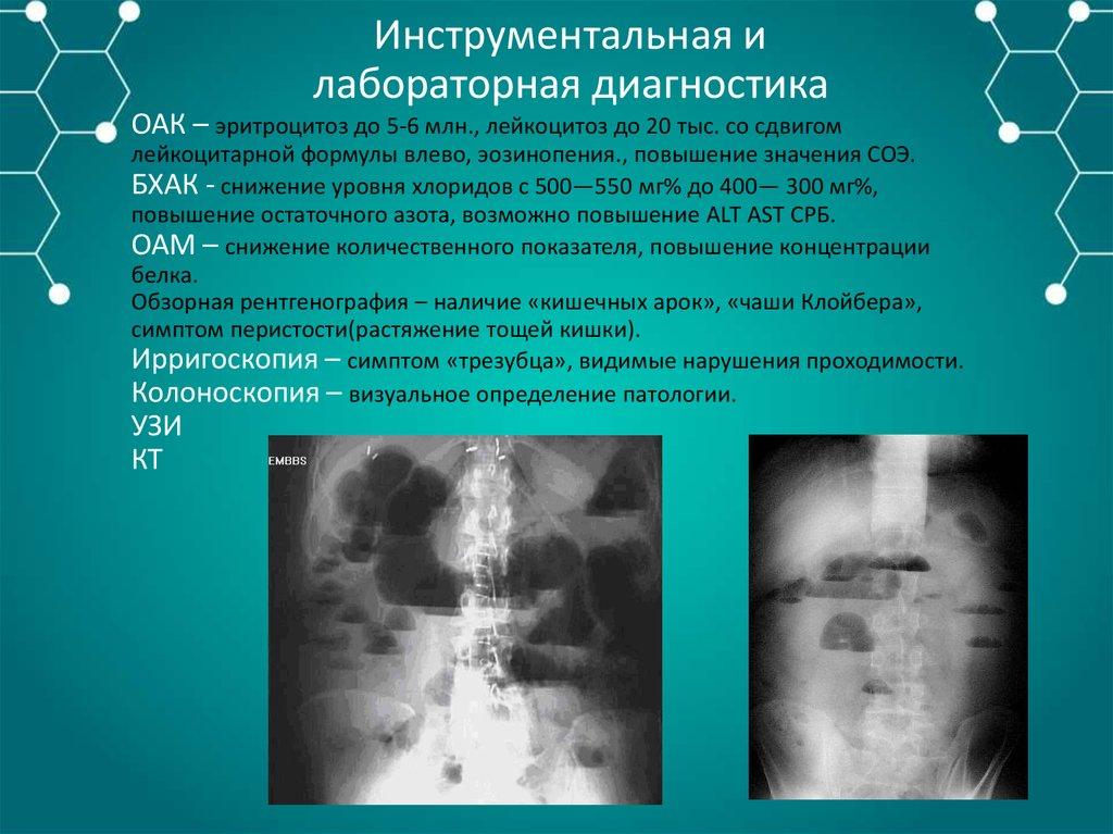 Симптомы перфорации полого органа