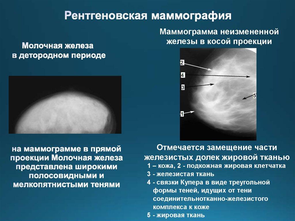 Маммограммы описание и картинки