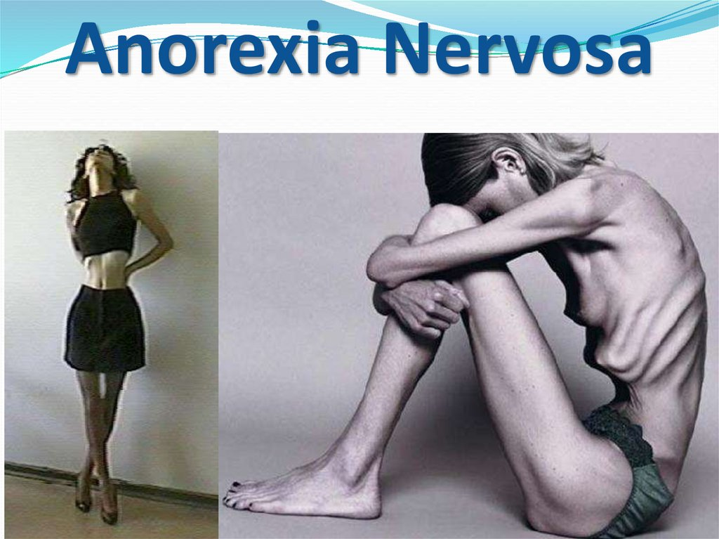 anorexia nervosa often leads to death if untreated Extreme weight loss in people with anorexia nervosa can lead to dangerous health problems and even death the term anorexia people with anorexia nervosa often.