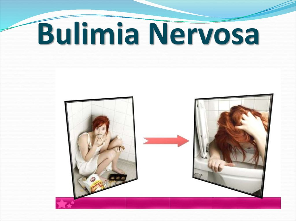 report on bulimia nervosa Read the latest medical research on anorexia nervosa, bulimia, compulsive overeating and binge eating what is the long-term outlook.