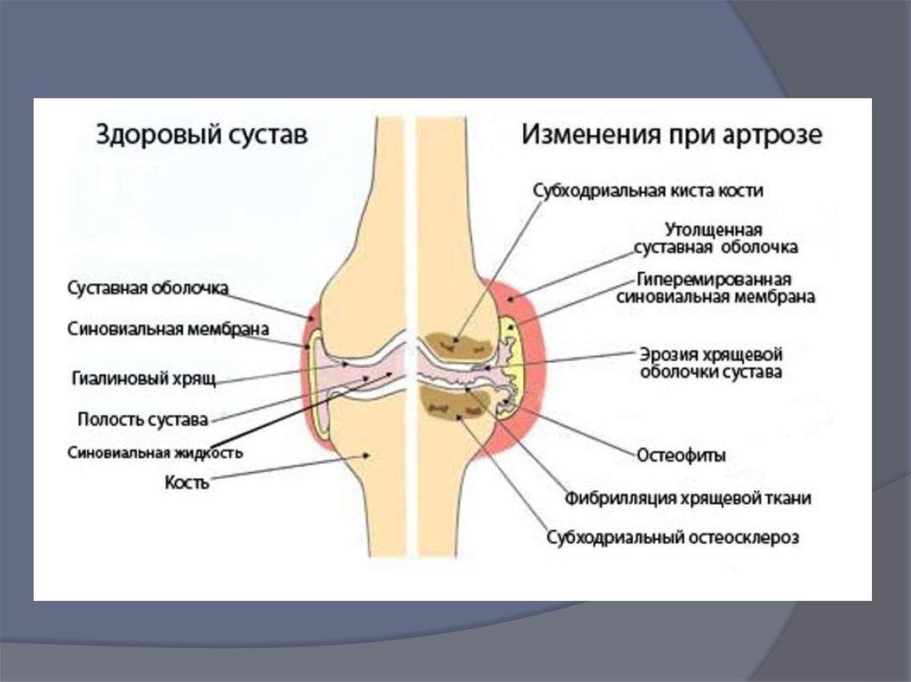 Артрит и артроз (заболевания суставов)
