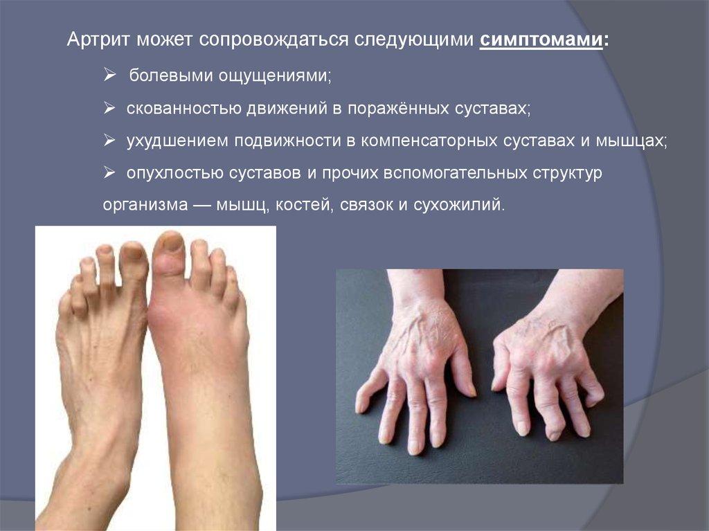 Лечение восстановление поражённых суставов чувствительность суставов на погоду