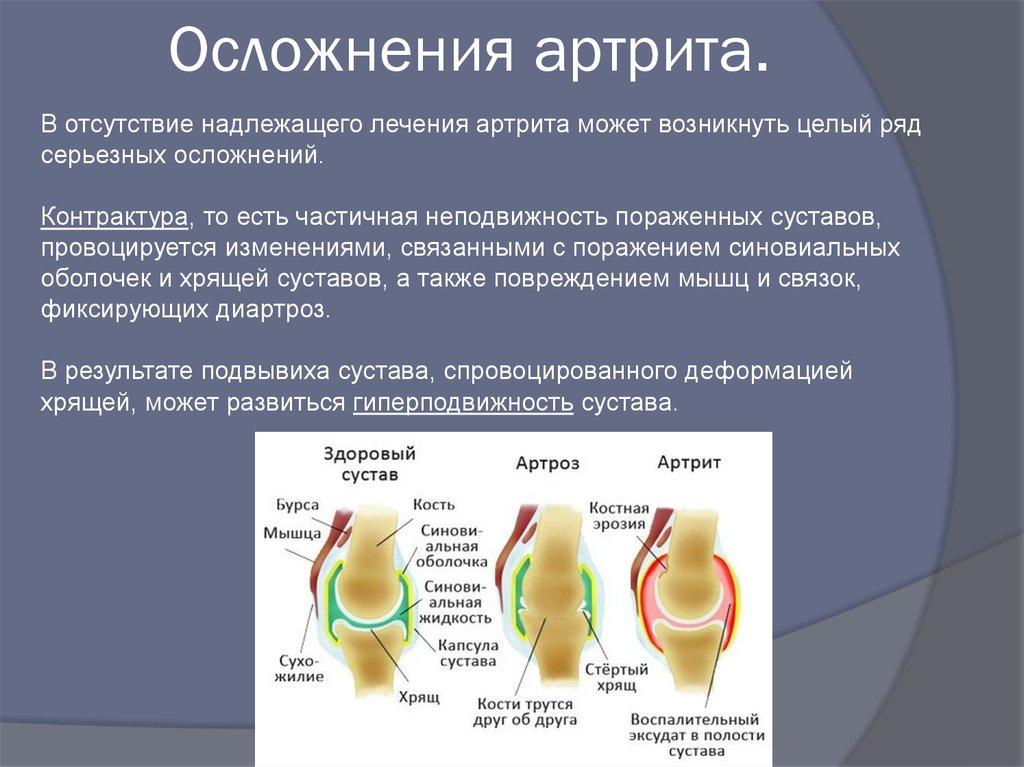 Осложнения на сустав таблица оценки суставов