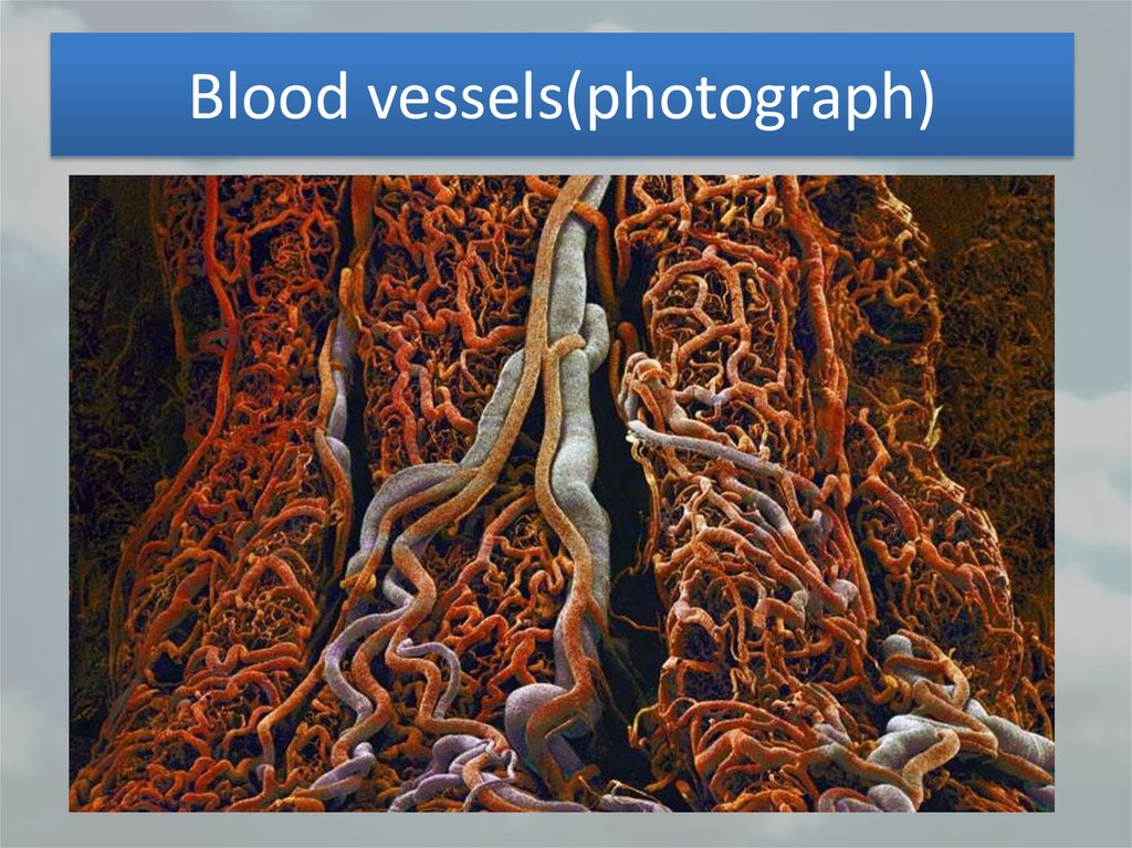 Blood vessels(photograph)