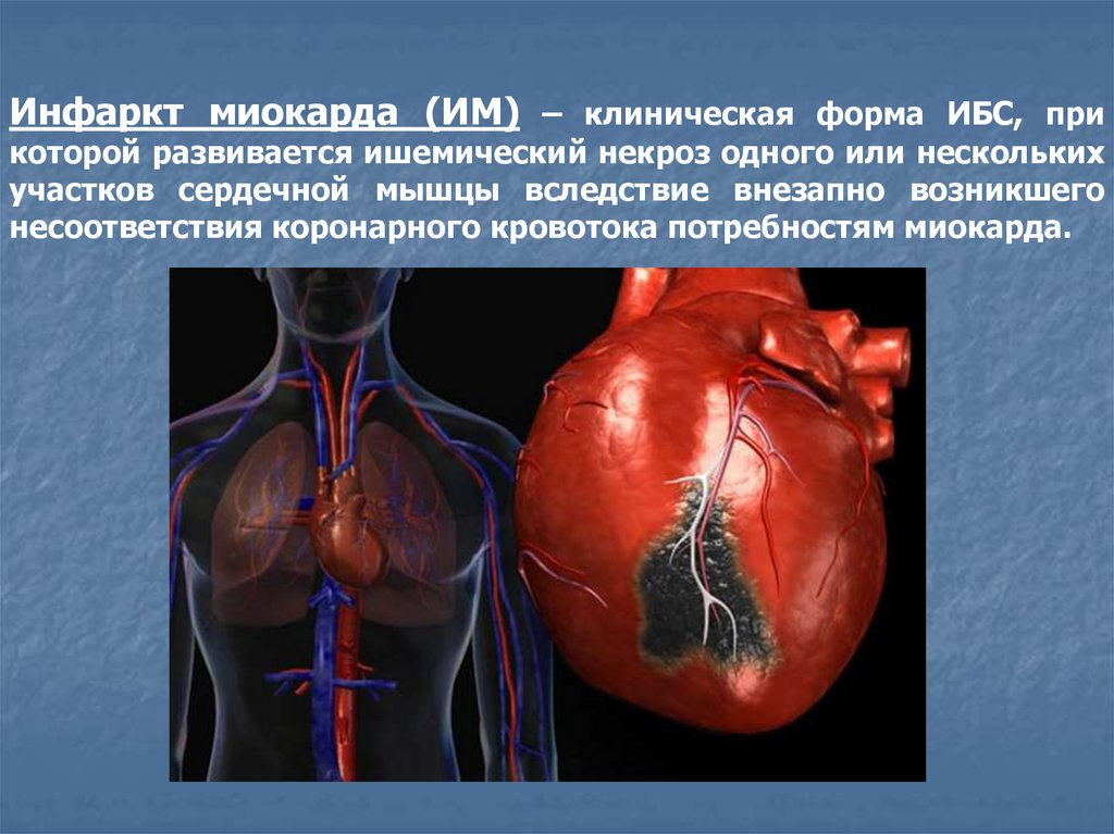 Перикардит плечевого сустава порожение суставов при
