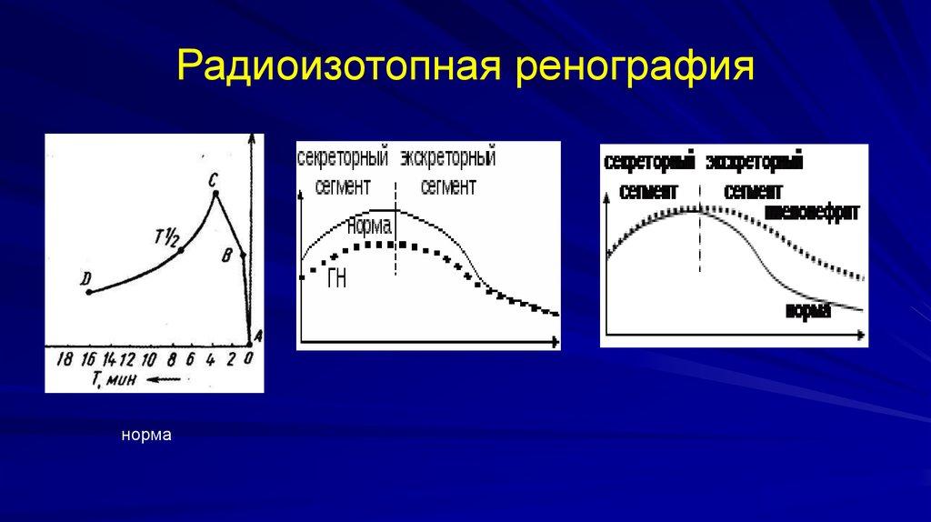 Радиоизотопная ренография