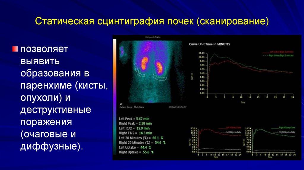 Статическая сцинтиграфия почек (сканирование)