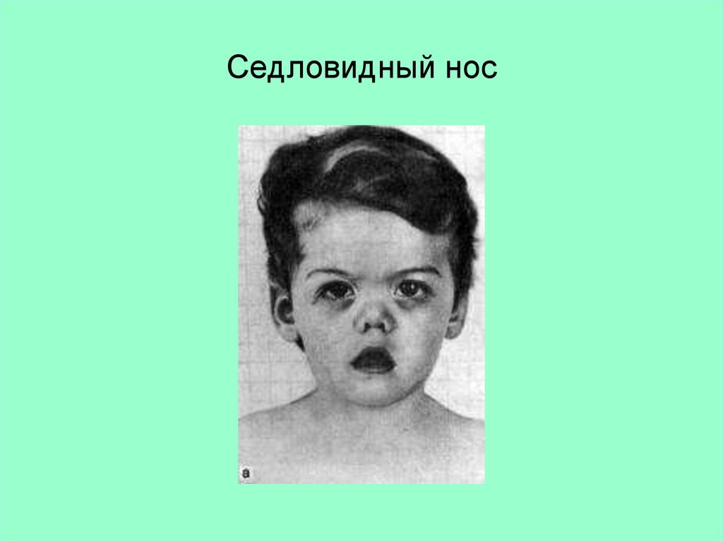 признаки врожденного сифилиса у детей