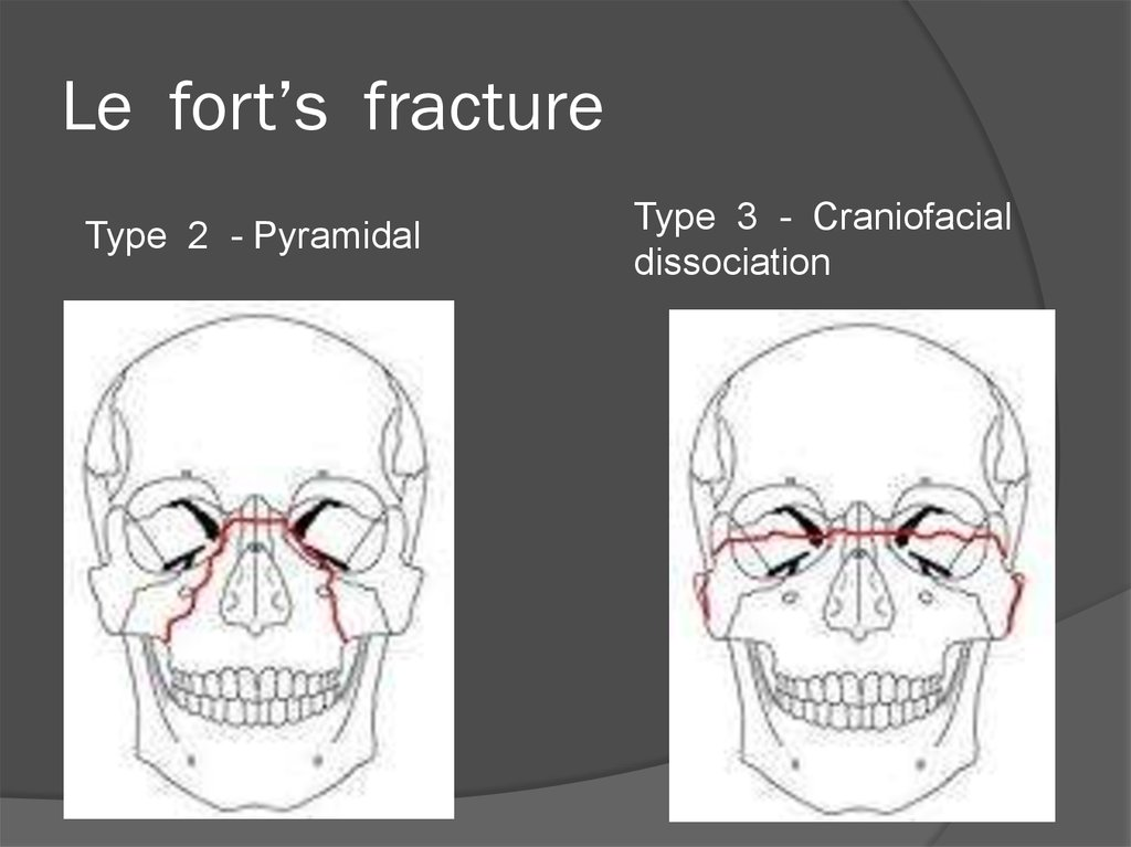 Le fort's fracture