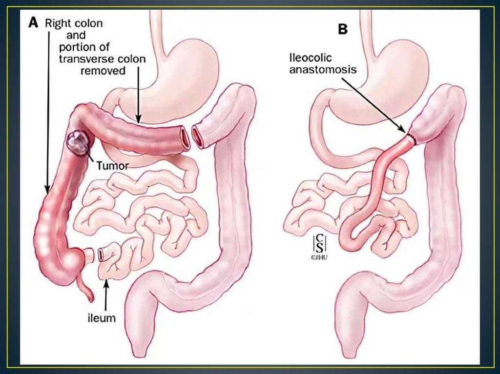 Enterectomy - online presentation