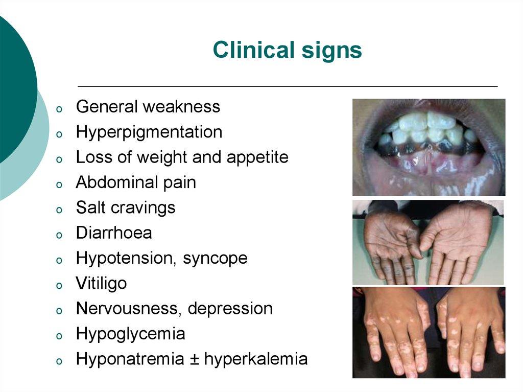 addisons disease hypocortisolism essay