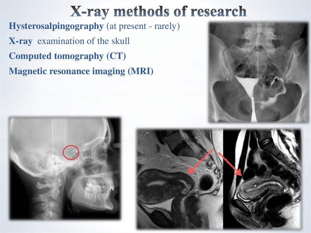 X-ray methods of research
