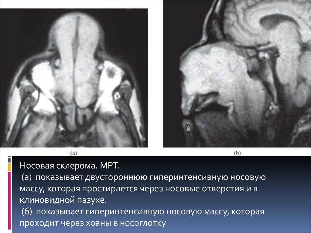 Склерома гортани история болезни