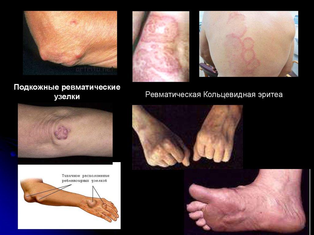 Ревматический кардит поражения суставов пластырь tianhe gutong tiegao для лечения суставов