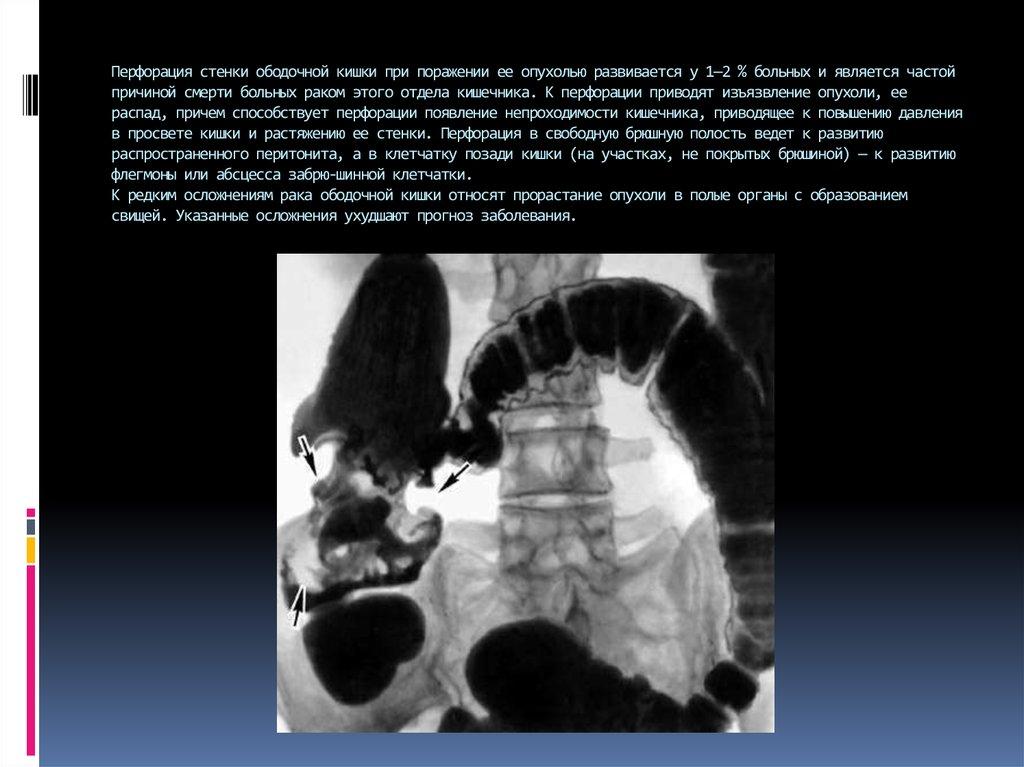 Перфорация стенок кишечника